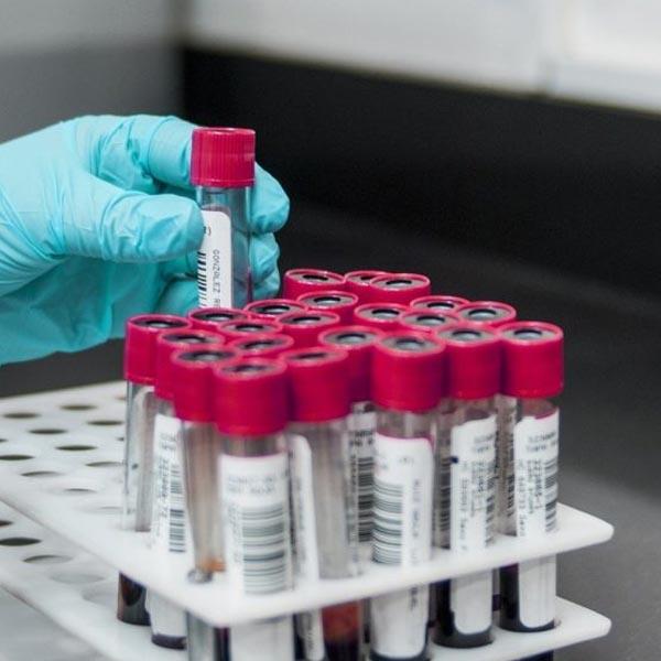 Bauru e Chavantes confirmam circulação da nova cepa de coronavírus
