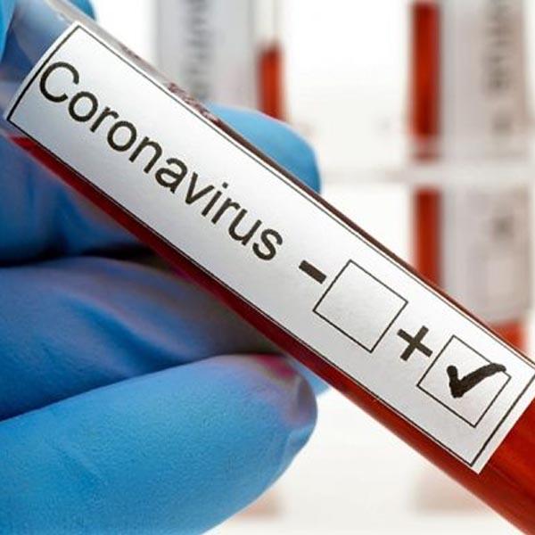 Paraguaçu chega a 2.700 casos positivos de Covid-19